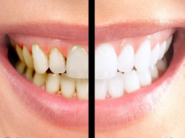 любом отбеливание зубов перекисью фото около